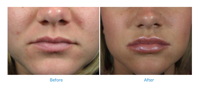 Which Filler Is Best For Lip Enhancement? | Rockwall Lip