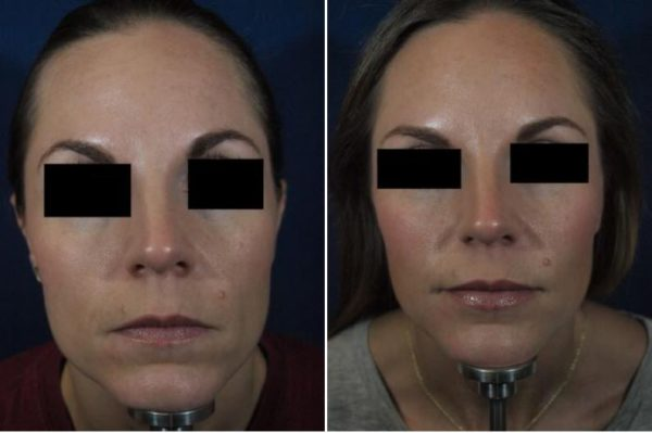 How Much Does Liquid Facelift Cost in Rockwall, TX