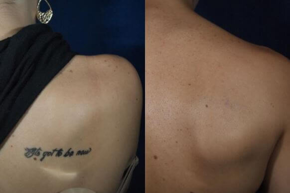 Rockwall Laser Tattoo Removal